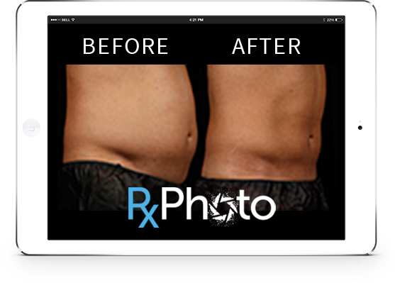 compare 2 photos side by side by medical software RxPhoto