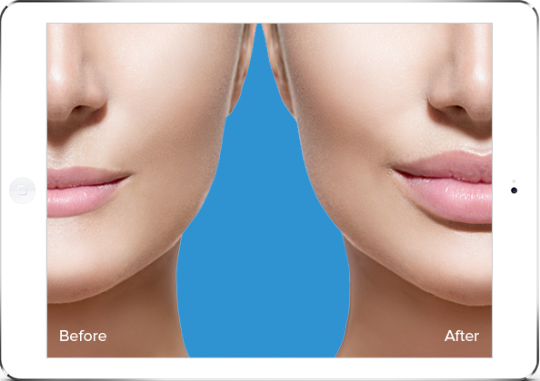 before and after plastic surgery software with market and illustrate services